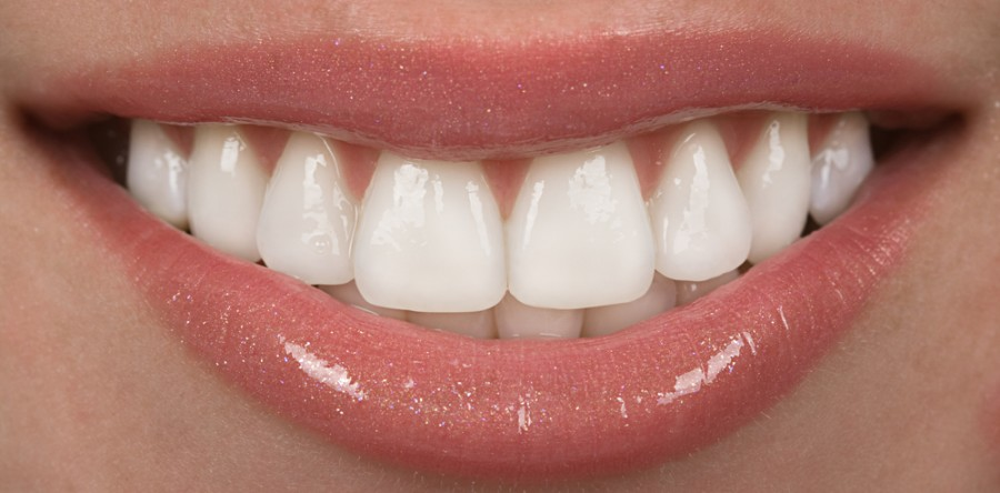 Are Porcelain Veneers Right For Me?